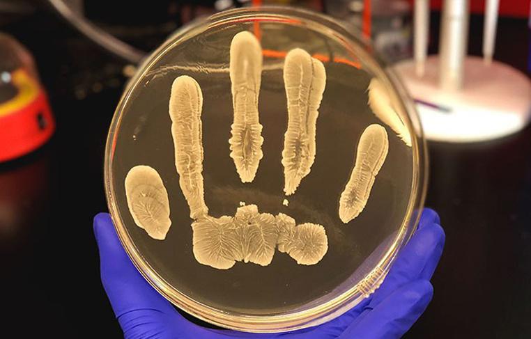 Инсон териси бактерияларида саратонга қарши кураш кучлари мавжуд
