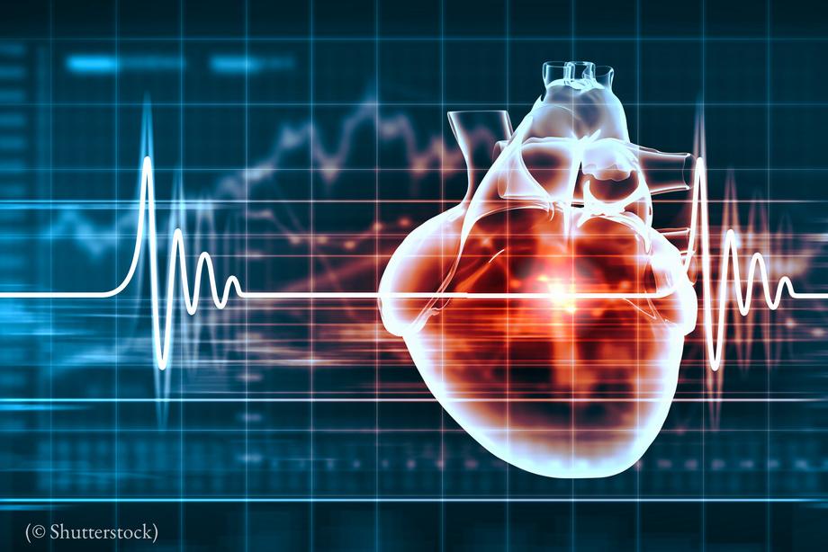 Кардиолог: ягодицы могут спасти от инфаркта